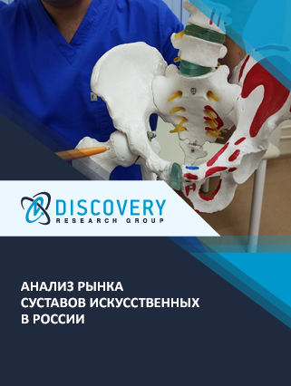 Маркетинговое исследование - Анализ рынка суставов искусственных в России