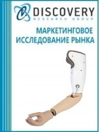 Маркетинговое исследование - Анализ рынка протезов верхних и нижних конечностей в России